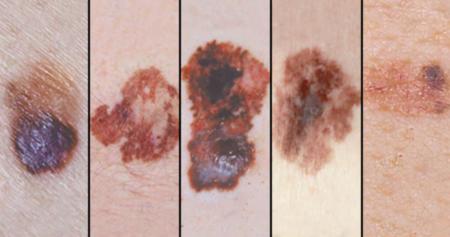 prevención melanooma